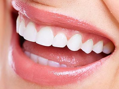 白い歯にすることが可