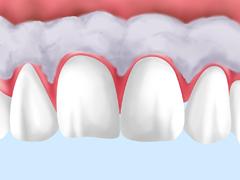 川越駅西口・川越ホワイト歯科クリニック・ガムブリーチング