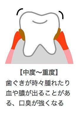 中等度の歯周病