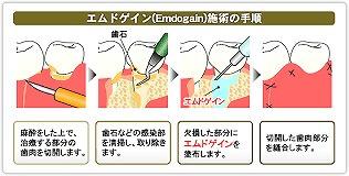 エムドゲイン(歯周再生療法)