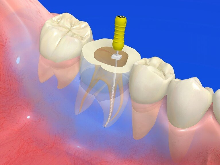 なるべく天然歯を残す拡大鏡を使った根管治療