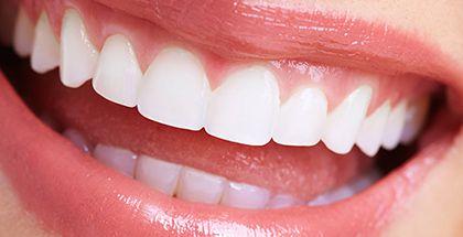 銀歯やすきっ歯の改善 セラミック治療